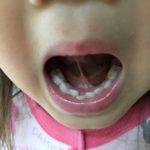 子供の歯並びがガタガタなので歯科医へ相談してみた